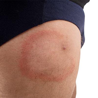 Tick bite on a man's leg